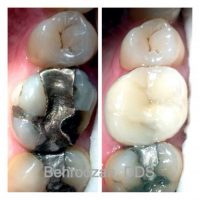 crowns and veneers Santa Monica dentist