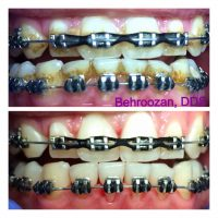 Ultrasonic Cleaning with Jet Whitening Dentist