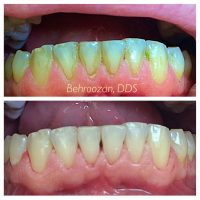 Ultrasonic Cleaning with Jet Whitening